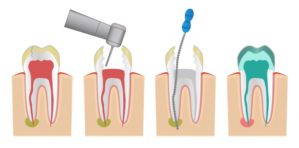 endodoncia en bogota
